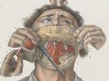 【閲覧注意】19世紀の野蛮な外科手術が怖すぎる、痛すぎる、残酷すぎる!