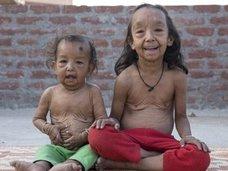 老人として生まれた幼児 ― 「早老症」と「皮膚弛緩症」併発という残酷すぎる現実=インド