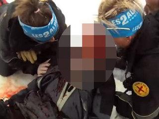 【閲覧注意】スキー死亡事故の悲劇はこうして起きる! 3つの事故死パターン