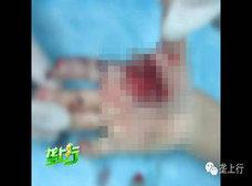 春節名物の爆竹が爆弾化!? 中国男児、誤爆で指8本吹き飛ばされる
