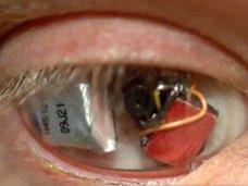自分の眼球をビデオカメラにした男 ― 自称・アイボーグが見る世界とは?=カナダ