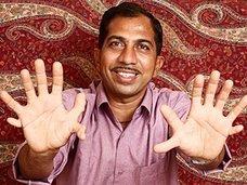 手足合わせて28本の指を持つ世界イチの多指症男! 「間違って指を切り落としそうになる」=インド