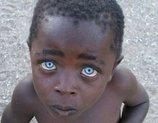 死の直前の瞳、偏見の瞳…深く心に刺さる「印象的な19の瞳」