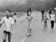【閲覧注意】決して消えないベトナム戦争の記憶とケロイドの激痛 ― ナパーム弾で全身が焼けただれた少女は今…