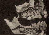 虫歯を我慢しすぎると「歯が爆発」する!? 体がフッ飛ぶほどの衝撃、原因はいまだに不明