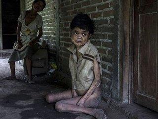 【障害者400人が隔離・鎖に繋がれた「呪われた村」! 恐ろしいほど残酷な差別の実態とは?=インドネシア