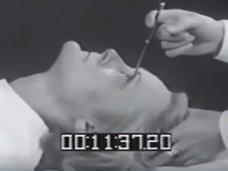 【閲覧注意】恐怖のロボトミー手術! 目頭から針を突き刺し、グリグリ動かして前頭葉をぐちゃぐちゃに