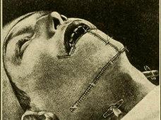 【超・閲覧注意】ホクロが前兆? 頭部むき出し、頭蓋骨内まで破壊された皮膚がん患者