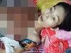 """【超・閲覧注意】胸一面に""""肉片の花""""が咲いた女 ― 凄まじい状況の中、彼女は何かを言おうとしていた…"""