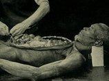 【閲覧注意】増加する胃腸が飛び出た乳児! 「腹壁破裂」ベビーとは?