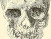 【超・閲覧注意】頭部が溶けた女 ― 合成麻薬クロコダイルで体中が壊死した人々