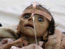 餓死する2日前の子どもの瞳が訴えかけるものとは? 骨と皮になった生後5カ月の赤ん坊は絶望を見て死んだ=イエメン