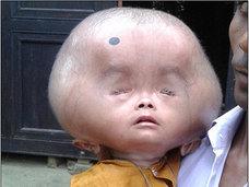【閲覧注意】破裂しそうなほど巨大な頭を持つ子どもたち ― 「水頭症」と貧困の二重苦
