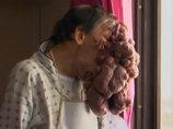 """【閲覧注意】ポルトガルのエレファント・マンの""""壮絶""""手術映像 ― 20年間男を苦しめた5キロの顔面腫瘍を切除"""