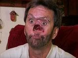 【閲覧注意】顔の中心が空洞になった男 ― 失われた鼻と消えなかった愛情
