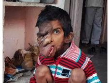 【閲覧注意】どんどん垂れ落ちる顔面腫瘍! いじめ、貧困、壮絶な痛み… 不幸のすべてを背負う少年=インド