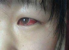 粗悪建材が原因で児童がシックハウスに集団疾患! 中国で急増する「毒学校」による健康被害