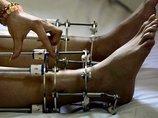 インドの短足手術がヤバすぎる! 164センチが182センチへ…観光客殺到も危険がいっぱい