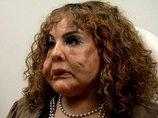 顔面にセメント注入で整形失敗、コブコブの怪物に…! 衝撃的なアメリカの整形手術3例