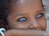 「妖精の顔」で生まれる奇病 ― ワールデンブルグ症候群