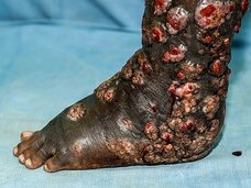 【閲覧注意】癌はまだマシ!? 性器破壊、全身骨化、血管漏出… 世界で最も恐ろしい10の病