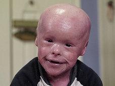 【閲覧注意】皮膚が剥がれて生後すぐ死ぬ「ハーレクイン型魚鱗癬」を患いながら、5歳を迎えた少年の現在とは?