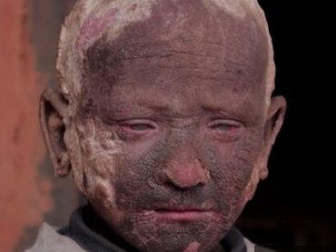 【閲覧注意】石化する少年 ― 手足動かず会話困難、治療もできない状況に変化の兆し=ネパール
