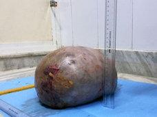 【閲覧注意】5カ月で7キロまで膨張した超巨大腫瘍がヤバすぎる!「数日遅かったら死んでいた」=インド