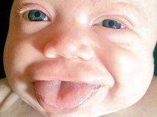 口からニョキニョキ、舌だけが2倍の速さで成長する奇病 ― ベックウィズ・ヴィーデマン症候群