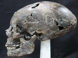 韓国で新羅時代の「コーンヘッド」頭蓋骨が発掘され衝撃広がる! 日本人の遺骨の可能性も…!?