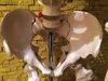 難病・奇病の実物標本がずらり 世界最高峰の人体博物館