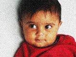 """1歳の赤ん坊のペニスが突然、25歳に急成長! 陰毛生えて""""大人の股間""""に=インド"""