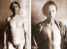 麻酔なしで信者全員去勢、乳首と女性器も切除 ― ロシア、恐るべき異端の宗教「スコプツィ」とは?