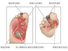 ヤケドに気づかず足が壊死→切断! 日本の日常に潜む危険な病気