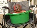 【閲覧注意】バケツの中の人生 ― 生後6カ月から顔しか成長しなかった女=ナイジェリア