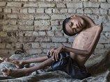 【奇病】首がグニャリと180度曲がってしまった少年=インド  母親にも呪われ続けた壮絶人生