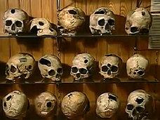 スライスした頭部、巨人症骨格、結合双生児の骨格が展示されている人体博物館