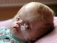 圧迫される脳、突出する頭…! 原因不明の奇病「ダンディー・ウォーカー症候群」と戦う生後7カ月の赤ん坊=英