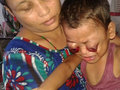 【閲覧注意】目玉が膨らみ、飛び出し、血が吹き出す! 原因不明の奇病で失明した4歳男児=インド