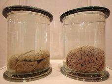 【哲学】現実は「水槽の中の脳」が見ている夢だった! デカルトとカントも唱えた「シミュレーション仮説」の真実性とは?