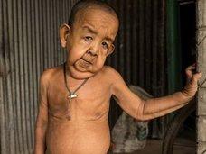 4歳なのに80歳の風貌! 差別と貧困に喘ぐリアル「ベンジャミン・バトン」の過酷な人生=バングラデシュ