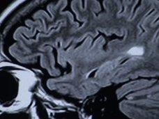 """脳の詳細な地図、新たに100領域が発見される! 人体最後の秘境""""脳""""の謎"""
