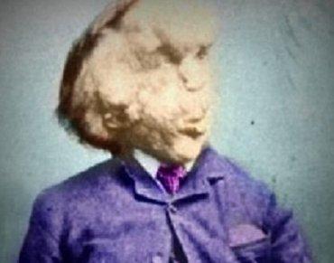 エレファントマンの頭蓋骨はこうなっている ― 伝説の男ジョセフ・メリックの異常な骨