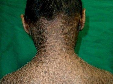 【衝撃】ウロコで全身を覆われた姉弟 ― 皮膚がひび割れ、剥がれ落ちる難病と徹底的差別の実態=インド