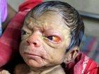 """4億人に1人の""""奇跡""""か!? 80歳の姿で生まれるリアル「ベンジャミン・バトン」事例、またも発生!=バングラデシュ"""