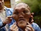 """細胞増殖が止まらない顔面、歯が粉砕され耳も聞こえなく…! """"エイリアン顔""""の男、支援を訴える=中国"""