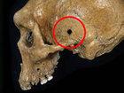 """30万年前のローデシア人の頭蓋骨に明らかな""""銃痕""""! スナイパーにこめかみを撃ち抜かれた可能性も!?"""