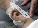 失った耳を腕で培養して再建→側頭部にくっつけて完成! 最先端外科手術の様子がキモスゴい=中国