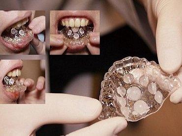 元歯科医が本気で開発した「フェラチオ専用マウスピース」が超話題! ペニスに完璧フィット、圧倒的な快感を約束!