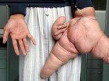【閲覧注意】手足や股間の超・肥大化が止まらない「象皮病」! 手術風景も激グロで身悶えるレベル